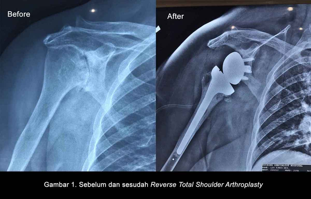 shoulder arthroplasty