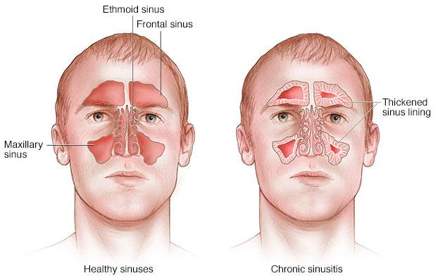 Sinusitis Kronis